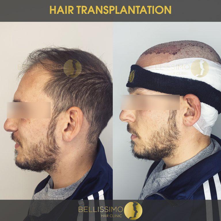 Трансплантация на коса, пациент, Bellissimo clinic