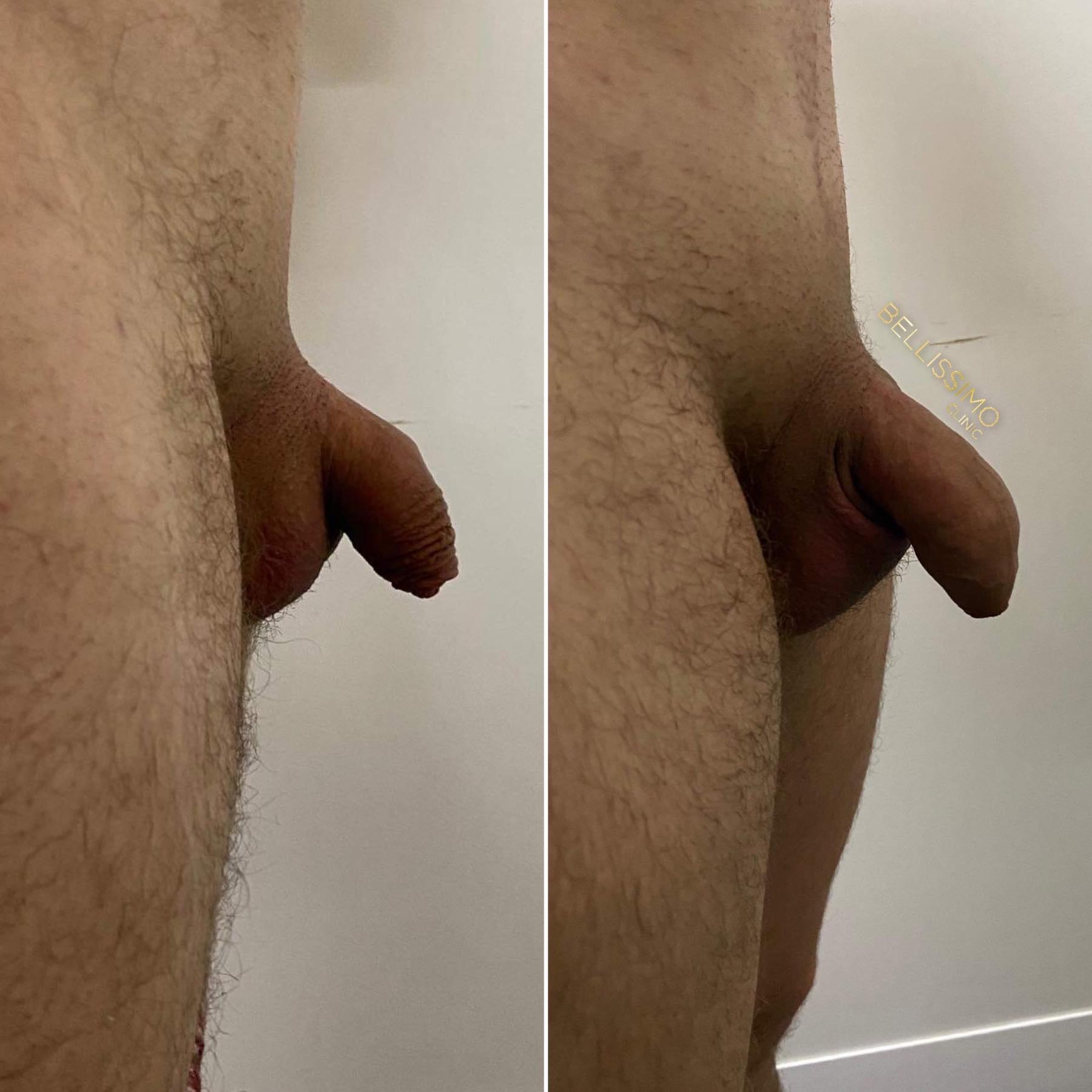 Уголемяване на пенис с хиалуронов филър, неинвазивно