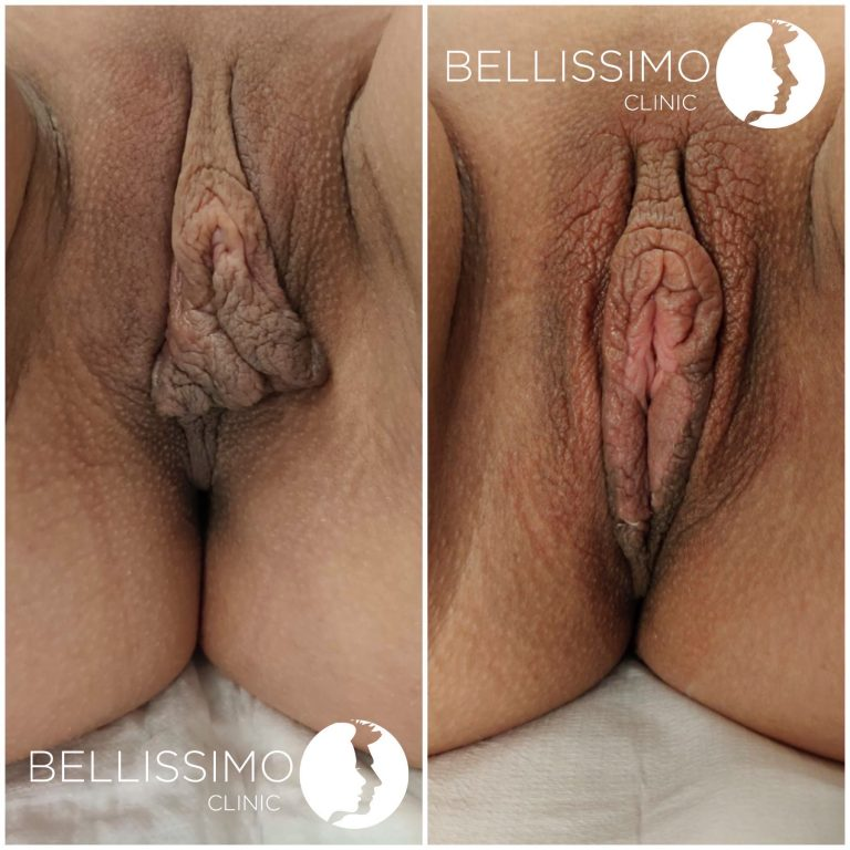 Лабио пластика от Bellissimo clinic