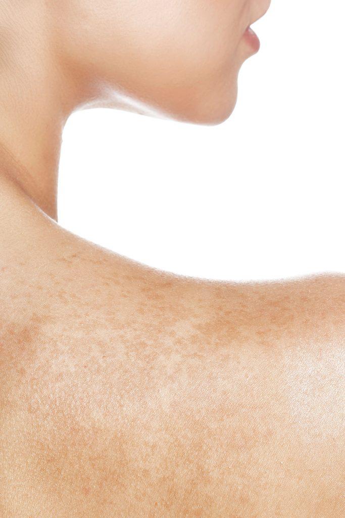 Лазерно премахване на пигментни петна в клиника Bellissimo
