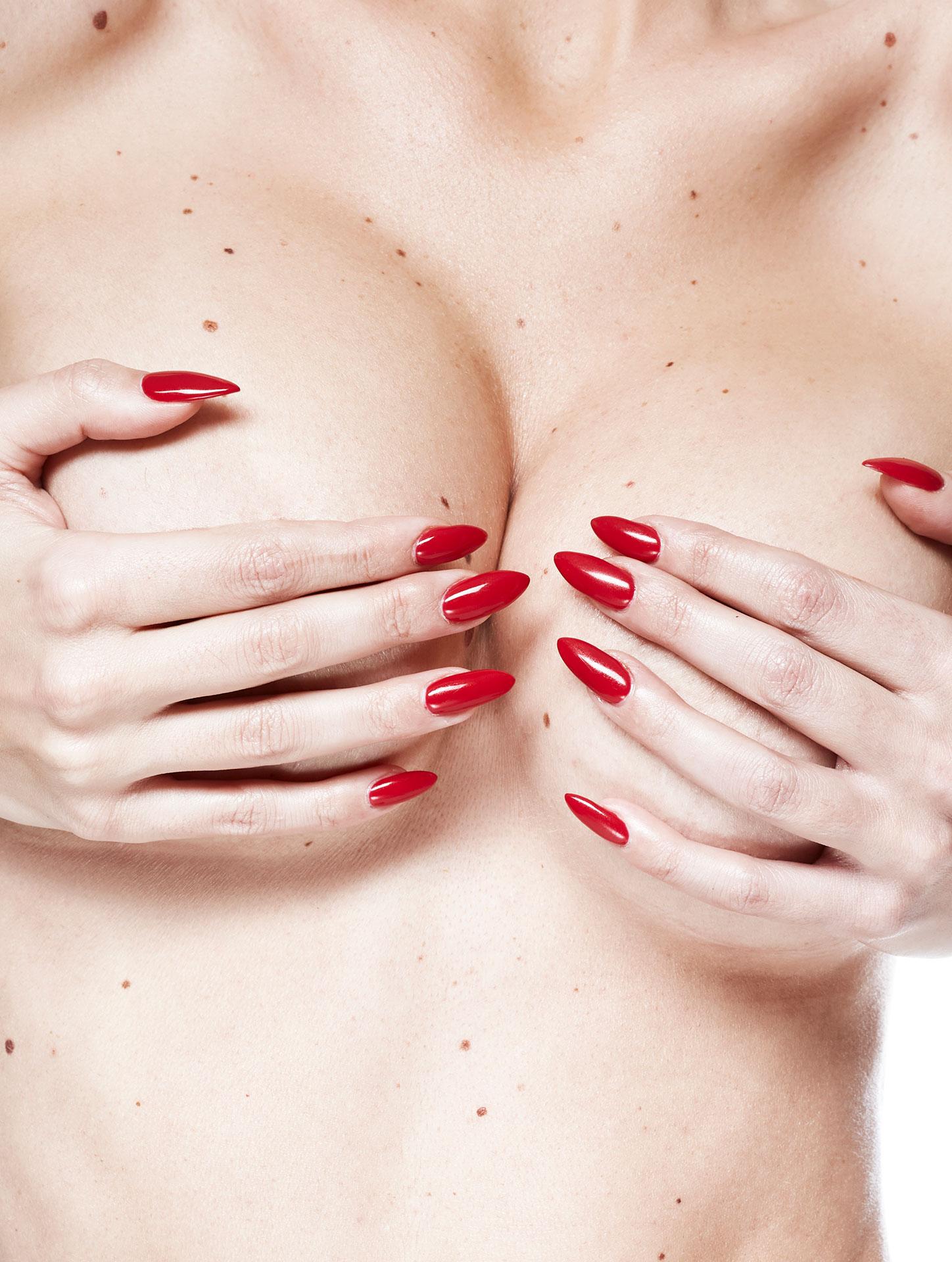 Повдигане на гърди - Bellissimo Clinic
