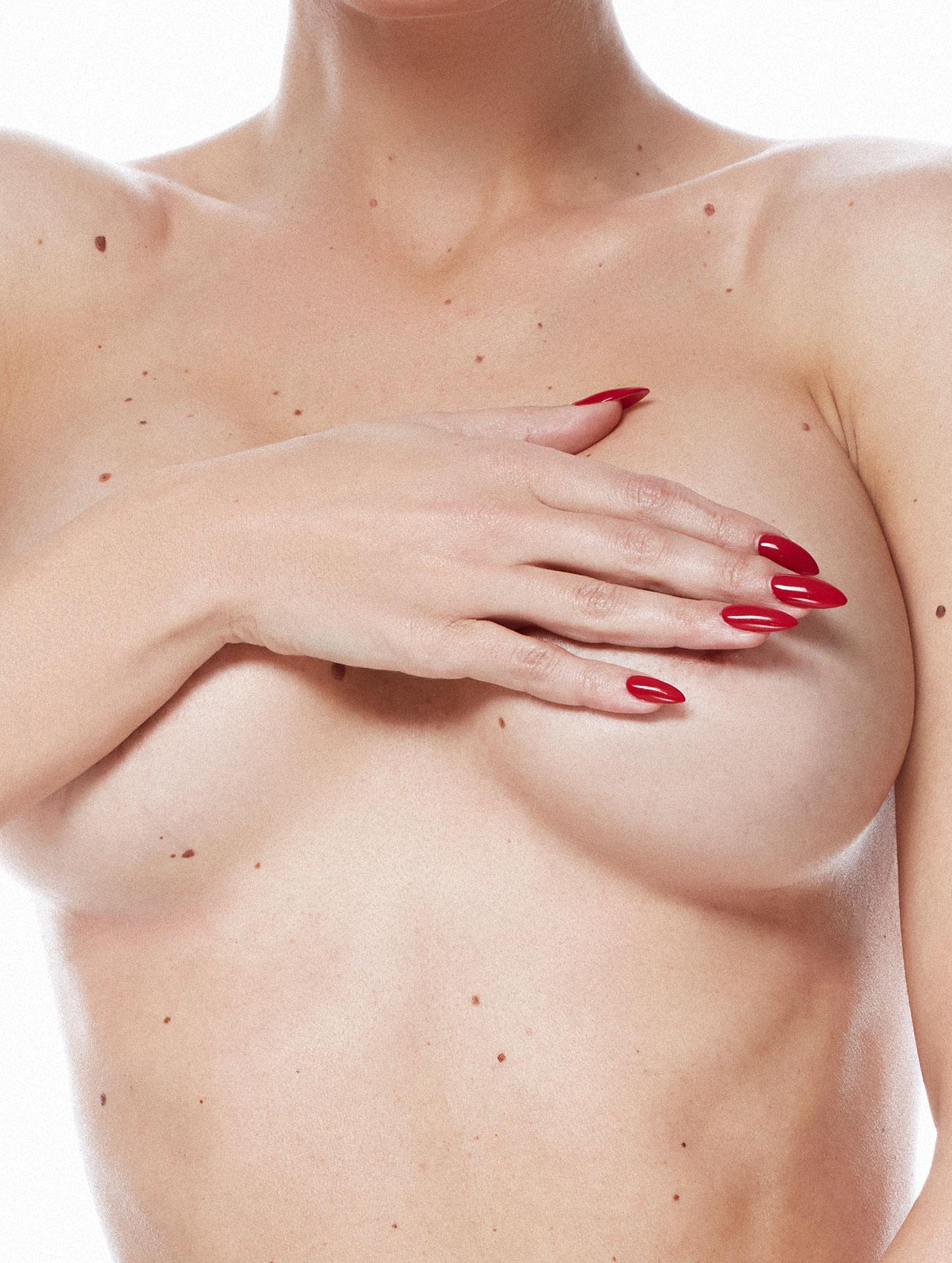 Увеличаване на гърди - Bellissimo Clinic