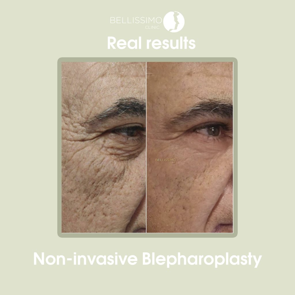 Блефаропластика - bellissimo clinic